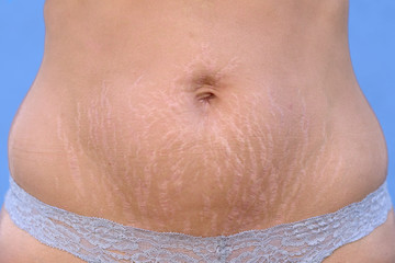 Woman displaying stretch marks on her abdomen