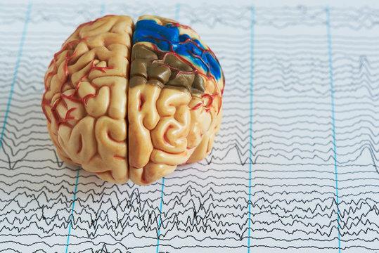 Brain model on human brain wave background