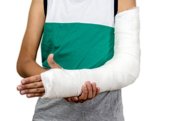 Broken arm in cast