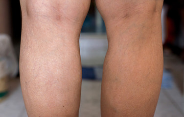 Varicose veins on the womans legs,Body and health care concept,Selective focus