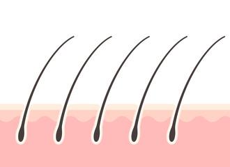 頭皮と毛根の断面図