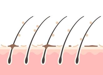 フケのある頭皮の断面図