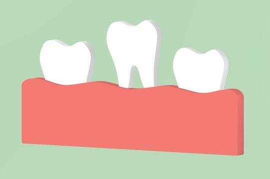 loose tooth - dental cartoon 3d render