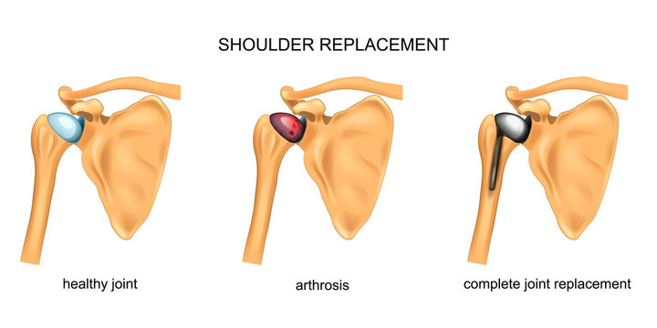 shoulder replacement. surgery