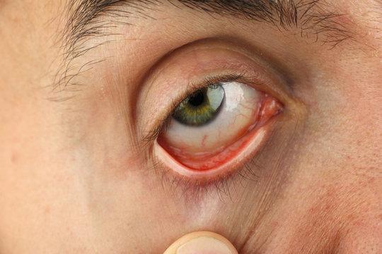man pulls the lower eyelid to survey the eyeball, closeup macro