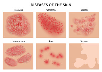 Skin diseases. Derma infection, eczema and psoriasis. Dermatology vector illustration