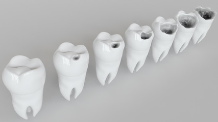 The stages of caries on the molar - 3D Rendering