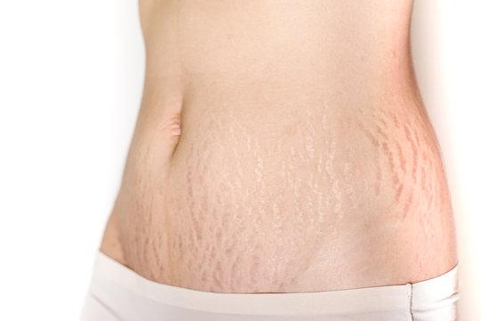 Abdominal scar marked pattern