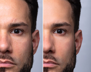 Man's Face Before And After Cosmetic Procedure