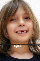 Die zweiten Zähne - Milchgebiss