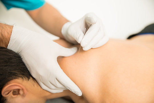 Shirtless Man Receiving Dry Needling Therapy From Doctor