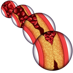 Artery Disease Diagram