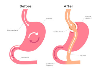 Gastric Bypass vector / stomach anatomy
