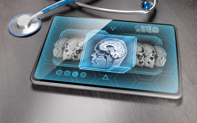 Medical tablet with brain scan on its screen