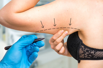 Plastic surgery doctor draw line on patient arm