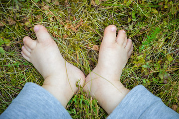 Small feet of baby with Down Syndrome on the green grass
