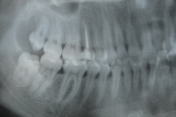 a photograph of teeth, an x-ray, a roentgen of teeth in a patient in a hospital