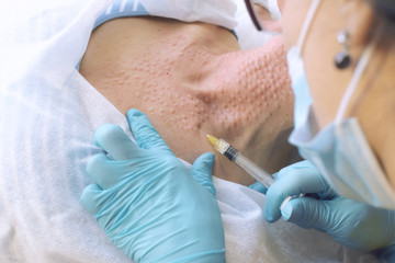 The cosmetologist injects the patient into the neck. first person view. closeup