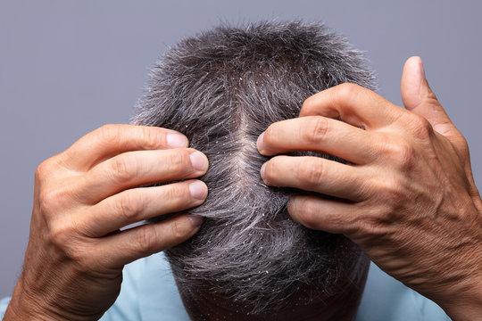 Dandruff On Man's Hair
