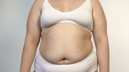 Overweight female in white lingerie, saggy belly and stretch marks on skin