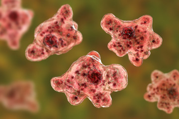 Brain-eating amoeba infection, naegleriasis