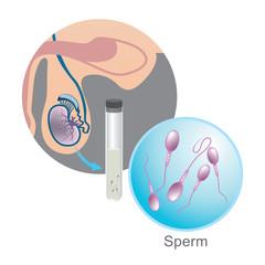 In vitro fertilization, Sperm Illustration.