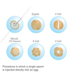 Process in which a single Sperm. Illustration Anatomy body Human.