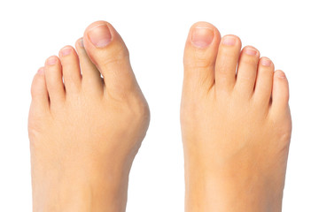 Woman feet before and after surgery for hallux valgus removal Wall mural