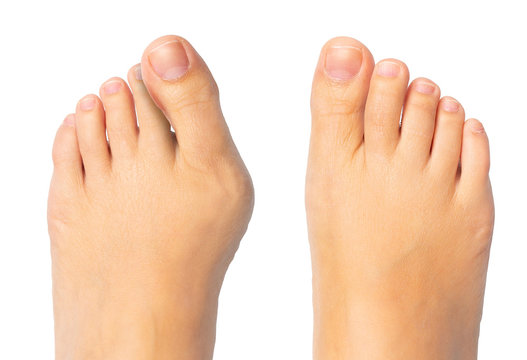 Woman feet before and after surgery for hallux valgus removal