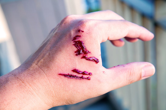 Focus dog bite wound and blood on hand. Infection and Rabies concept. Pet care and rabies prevention concept. Accidental and first aid concept. image for background, objects, copy space.