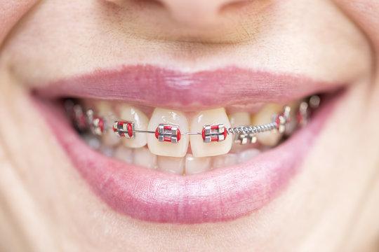 Orthodontic braces. Dentist and orthodontist concept.