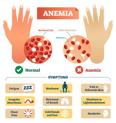 Anemia vector illustration. Labeled scheme with red blood cells.
