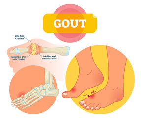 Gout vector illustration. Swollen and inflamed joint labeled scheme.