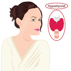 Goiter. Enlarged Thyroid. Endocrine disfunction vector illustration on a white background