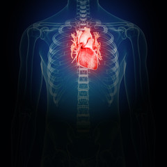 3d rendered medically accurate illustration of an inflamed heart