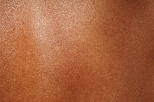 close-up human skin damged by age and sun tanning