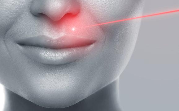 Laser hair removal or skin rejuvenation