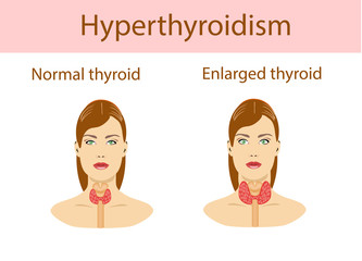 Woman with enlarged hyperthyroid gland. Vector illustration.