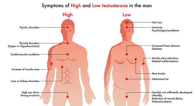 medical illustration of the symptoms and consequences in man to have a high level or a low level of testosterone