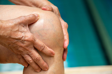 Senior woman suffering from knee pain, Massaging by her hand, Blue swimming pool background