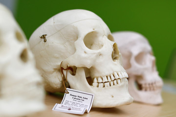 A replica human skull is shown in the virtual anatomy class at UNLV School of Medicine in Las Vegas
