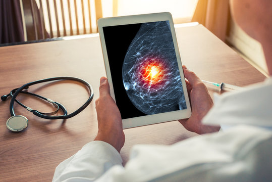 Doctor holding a digital tablet with xray mammogram skeleton. Breast cancer prevention