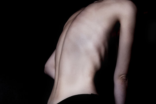 A girl with anorexia turned back, spine and ribs visible. Toned in cold tones for dramatic effect.