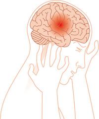 頭痛と脳のイメージ