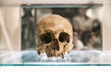Human skull in glass box : Close up