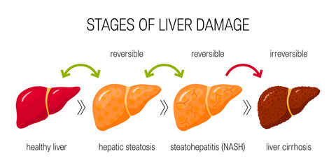 Liver damage vector concept