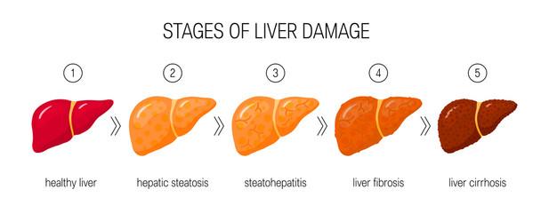 Liver damage vector concept