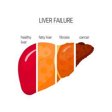 Liver failure vector concept