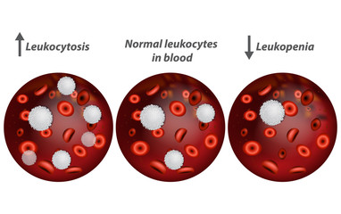 Leukocytosis and Leukopenia. White blood cell count.