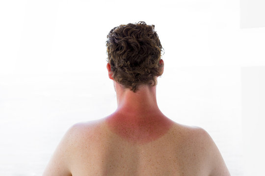 Close up of young man with a sunburn isolated on white background.